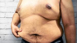 Homem Gordão Obesidade