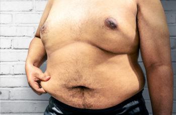 O que é obesidade mórbida e como tratá-la