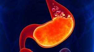 Cirurgia do refluxo gastroesofágico