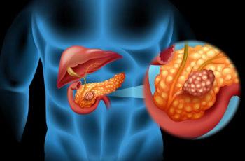 Câncer de pâncreas: causas e tratamento